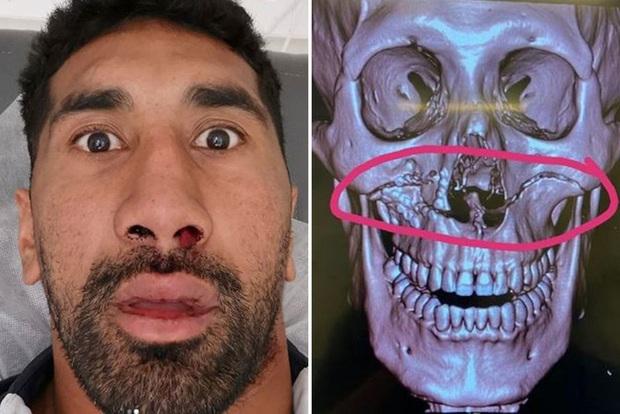 Húc đầu vào người đối phương, cầu thủ ôm mặt đau đớn rời sân, khi chụp chiếu các bác sĩ phát hiện ra chấn thương kinh hoàng - Ảnh 1.