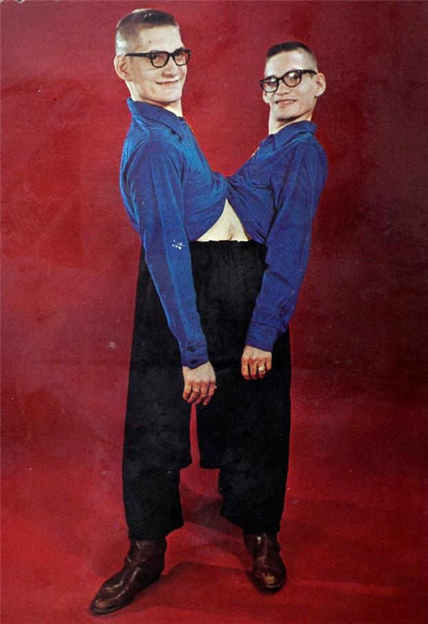 Nhìn lại hành trình 68 năm đồng hành của cặp sinh đôi dính liền sống lâu nhất thế giới: Sinh ra cùng nhau, chết đi cũng không rời - Ảnh 6.