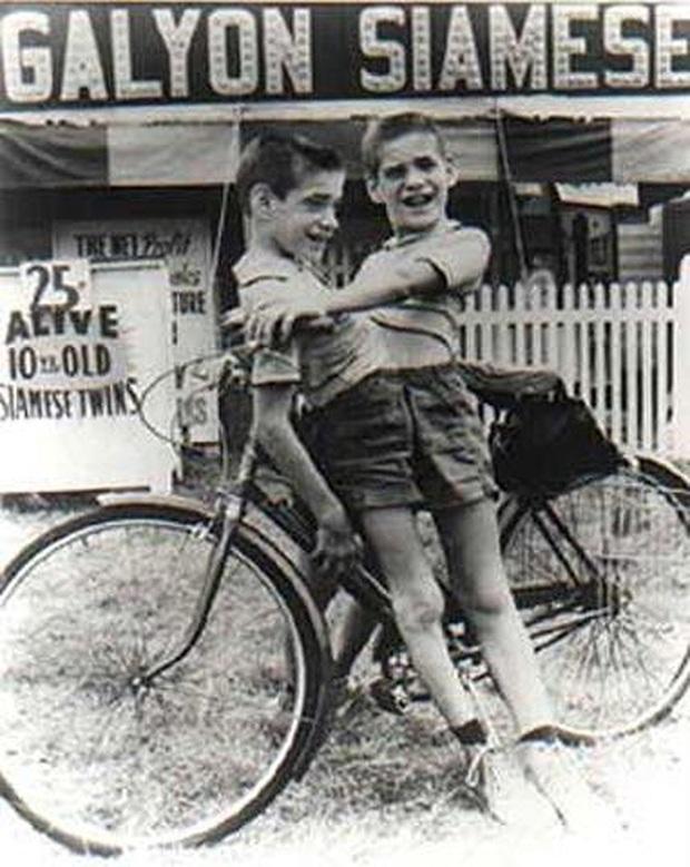 Nhìn lại hành trình 68 năm đồng hành của cặp sinh đôi dính liền sống lâu nhất thế giới: Sinh ra cùng nhau, chết đi cũng không rời - Ảnh 5.