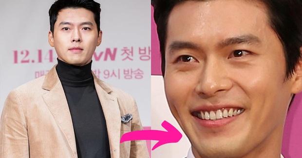 Nhan sắc thật của 7 tài tử Hàn qua ảnh chụp siêu cận chưa PTS: Song Joong Ki - Park Bo Gum da đẹp khó tin, Hyun Bin lại lộ khuyết điểm - Ảnh 1.