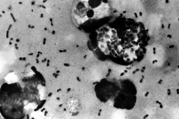 Trung Quốc phát hiện vi khuẩn dịch hạch tại 3 địa điểm ở Nội Mông Cổ - Ảnh 1.