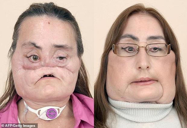 Nhìn lại những hình ảnh gây xúc động của bệnh nhân trải qua đại phẫu cấy ghép mặt sống sót lâu nhất thế giới vừa qua đời - Ảnh 2.