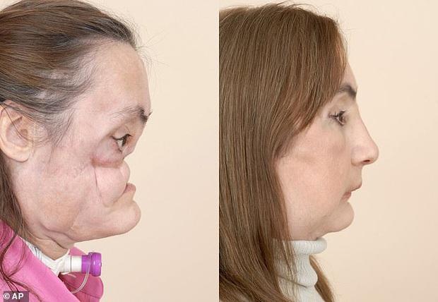 Nhìn lại những hình ảnh gây xúc động của bệnh nhân trải qua đại phẫu cấy ghép mặt sống sót lâu nhất thế giới vừa qua đời - Ảnh 6.