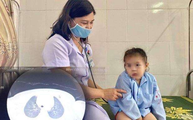 Bé 3 tuổi ho, khó thở không ngừng vì nút bấm điều khiển nằm trong khí quản - Ảnh 1.