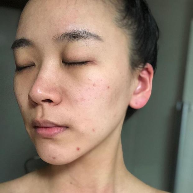 Bác sĩ cảnh báo 4 lỗi tẩy da chết nghiêm trọng khiến làn da của chị em xấu phát hờn và lão hóa nhanh như chớp - Ảnh 2.