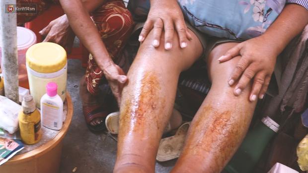 Vợ điếc, chồng mù sống trong căn nhà 1m2 giữa Sài Gòn: Bây giờ có tiền, vào viện cũng không ai chăm nuôi... - Ảnh 6.