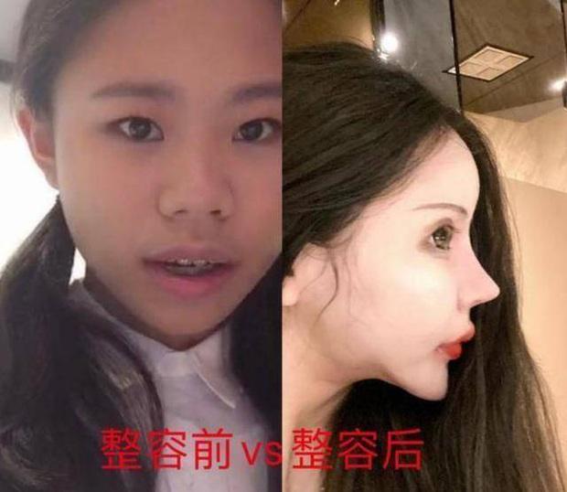 Mẫu nữ mặt rắn sinh năm 2005 tuyên bố tham gia Sáng Tạo Doanh 2021, nhan sắc phẫu thuật 70 lần khiến Cnet hoảng hồn - Ảnh 3.