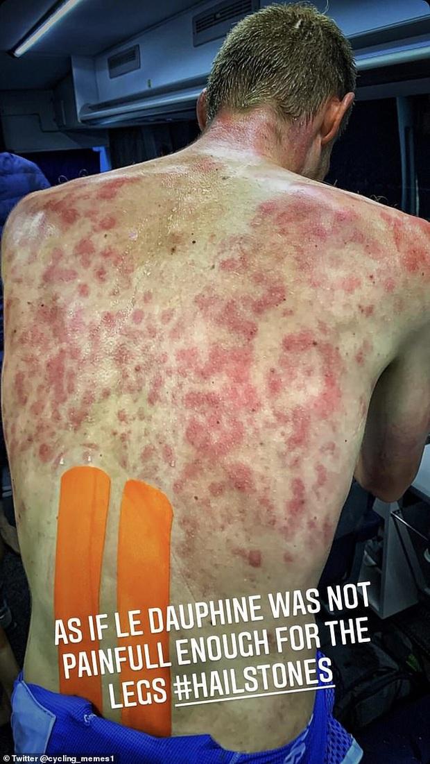 Rợn người với chấn thương trên trời rơi xuống của VĐV đua xe đạp, nhìn vùng bị ảnh hưởng cũng cảm nhận được cơn đau thấu xương - Ảnh 2.
