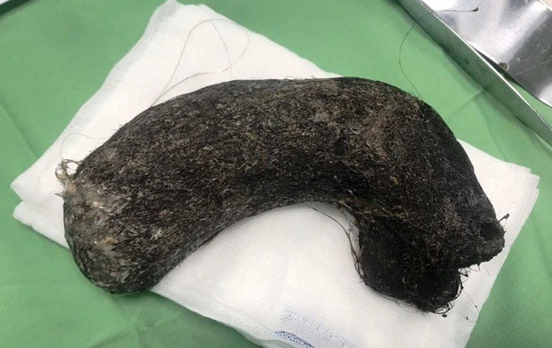 Phát hiện búi tóc khủng nặng 1kg ở trong dạ dày bé gái 11 tuổi - Ảnh 1.