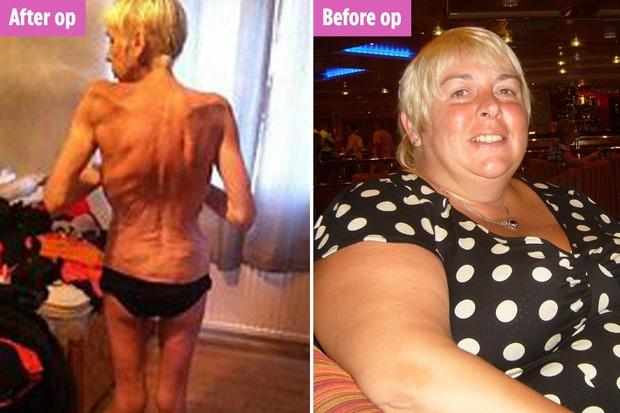 Người phụ nữ từng nặng 130kg gây sốc với thân hình gầy trơ xương ám ảnh sau phẫu thuật thắt dạ dày để giảm cân - Ảnh 2.