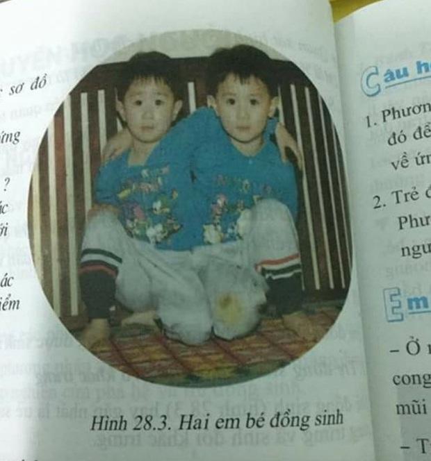 Cú lừa về cặp song sinh đình đám xuất hiện trong sách giáo khoa môn Sinh lớp 9 - Ảnh 1.