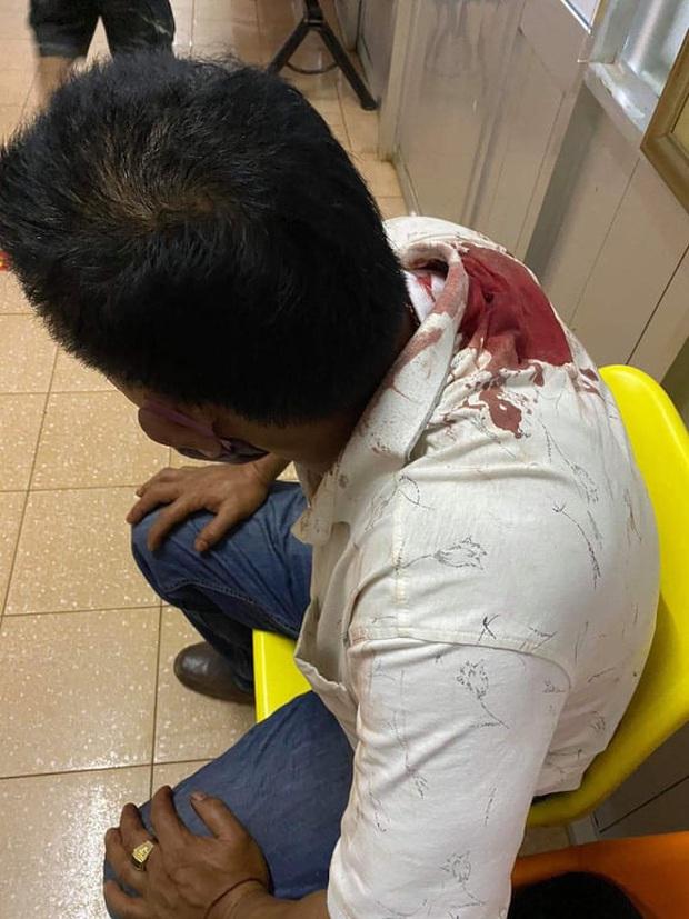 Mang lồng chim đi taxi, khách bị tài xế rút dao đâm nhập viện - Ảnh 3.