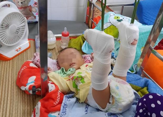 Người cha say rượu đánh con trai ruột 4 tháng tuổi gãy cả 2 chân lãnh 78 tháng tù - Ảnh 2.