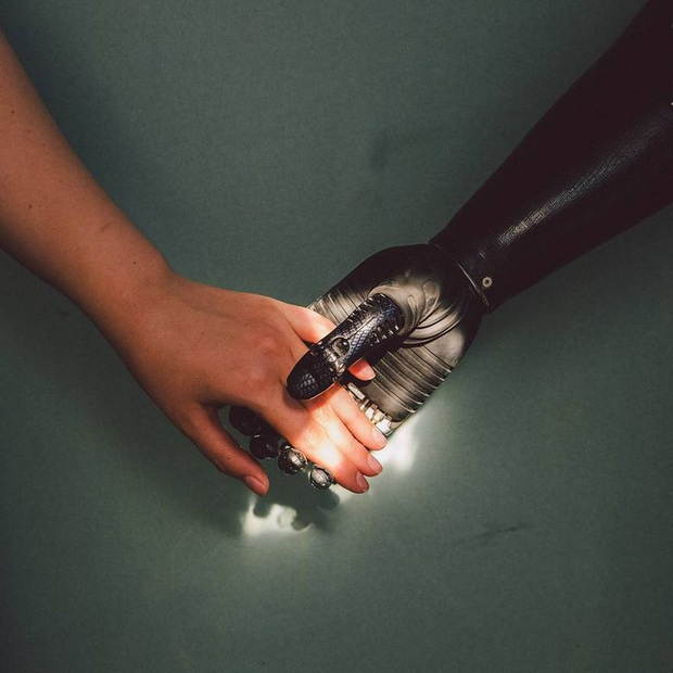 Tôi là một cyborg: Câu chuyện về chàng trai đánh mất cả hai bàn tay và cách anh biến cuộc đời mình trở nên cực kỳ có ý nghĩa - Ảnh 2.