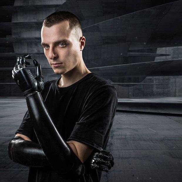 Tôi là một cyborg: Câu chuyện về chàng trai đánh mất cả hai bàn tay và cách anh biến cuộc đời mình trở nên cực kỳ có ý nghĩa - Ảnh 8.
