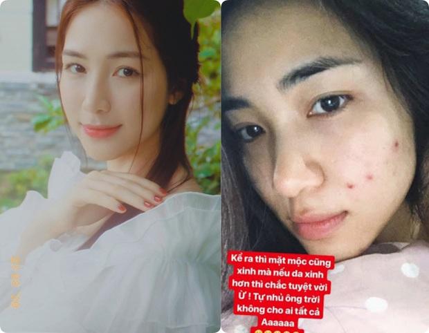 Sao Việt trước và sau khi trang điểm: Người lấm tấm mụn và quầng thâm, người có làn da đẹp mịn mướt - Ảnh 7.