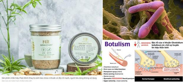 Vi khuẩn Clostridium botulinum có trong sản phẩm Pate Minh Chay nguy hiểm thế nào? - Ảnh 2.