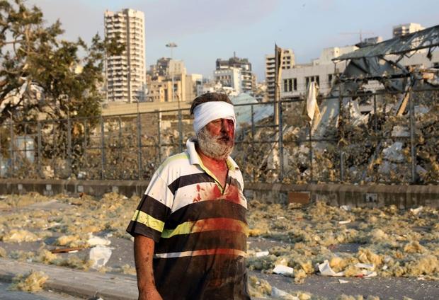 Chùm ảnh: Hiện trường như ngày tận thế sau vụ nổ kinh hoàng tại Lebanon khiến 4000 người thương vong - Ảnh 10.