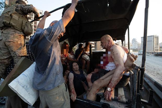 Lebanon và câu chuyện tình người nở rộ: Giữa thảm họa, người dưng cũng hóa người thương - Ảnh 2.