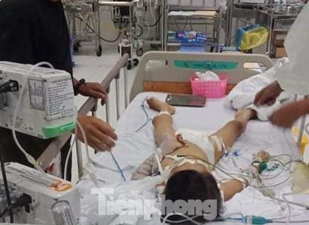 Xác định nguyên nhân bé 7 tuổi tử vong sau khi tháo đinh nẹp tay - Ảnh 1.