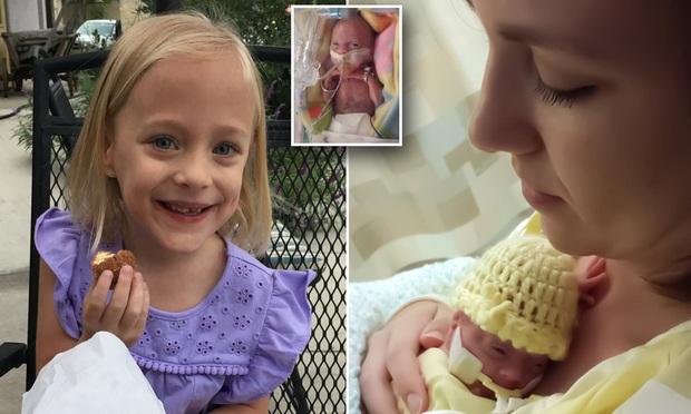 Chị song sinh đã qua đời, bé gái sinh non siêu nhỏ chỉ có 10% cơ hội sống sót đang làm nên kỳ tích khiến nhiều người xúc động - Ảnh 5.