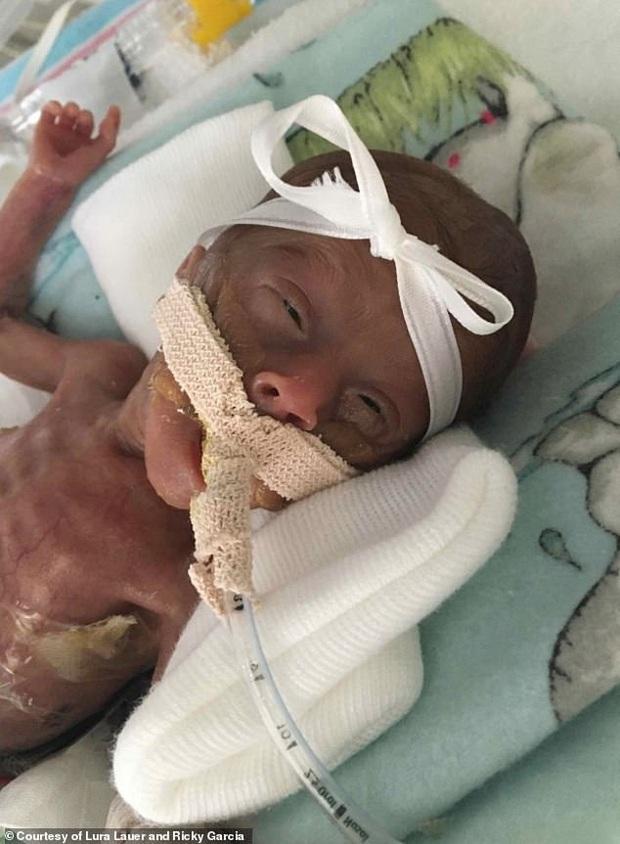 Chị song sinh đã qua đời, bé gái sinh non siêu nhỏ chỉ có 10% cơ hội sống sót đang làm nên kỳ tích khiến nhiều người xúc động - Ảnh 3.