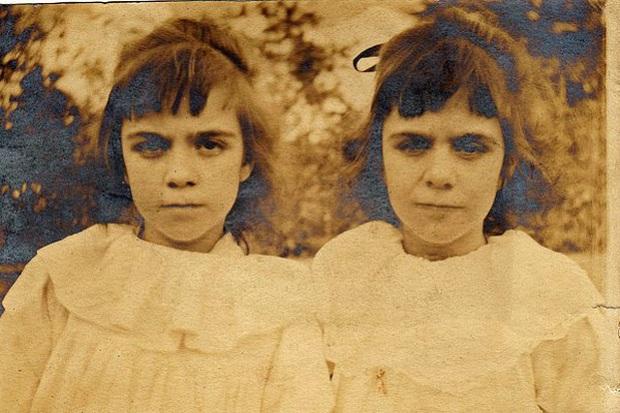 Cặp sinh đôi kỳ lạ: Sống cùng với ký ức của 2 người chị quá cố, giống đến cả nỗi sợ hãi và cách ăn không ai giải thích được - Ảnh 4.