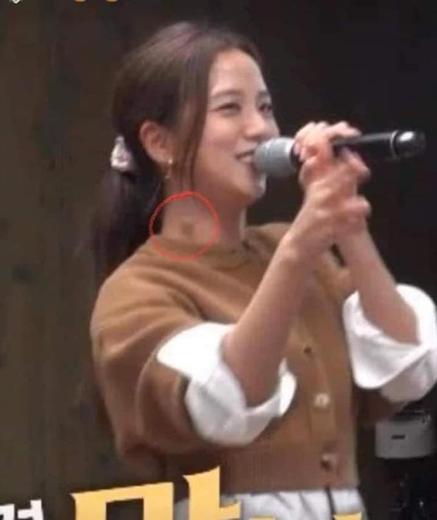 Dân tình hốt hoảng khi soi ra hạch sưng to bất thường ở cổ Jisoo (BLACKPINK), nghi bệnh cũ năm ngoái giờ lại tái phát - Ảnh 3.