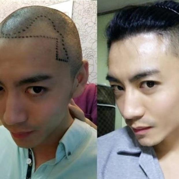 7 sai lầm khi chăm sóc tóc của các nam nhi: Không muốn ế mãn kiếp thì tránh ngay còn kịp - Ảnh 6.