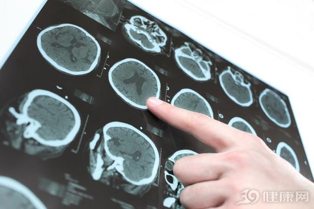 Người phụ nữ 36 tuổi bị nhồi máu não, nửa tháng sau thì qua đời, bác sĩ cho biết: Ăn loại gia vị này hàng ngày, sớm muộn gì mạch máu cũng bị tắc - Ảnh 1.
