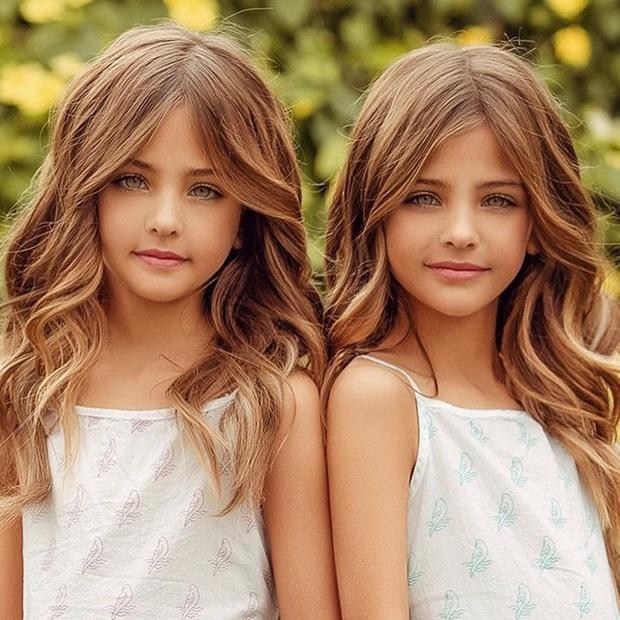 Cặp song sinh được mệnh danh đẹp nhất thế giới, 6 tháng tuổi đã nhận hợp đồng quảng cáo có ngoại hình thay đổi ra sao sau 10 năm? - Ảnh 3.