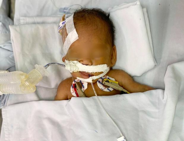 TP.HCM: Bé trai sơ sinh nặng 1.4kg bị bỏ rơi trước cổng chùa đã được bố mẹ đến đón về sau 2 tháng - Ảnh 2.