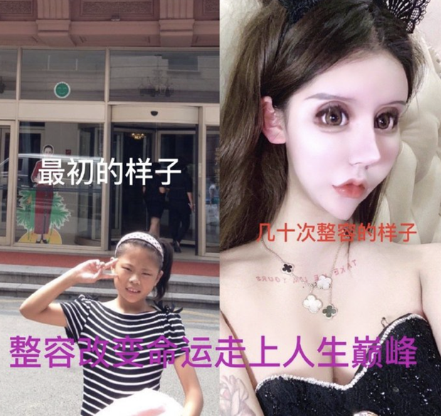 Nghiện dao kéo từ năm 13 tuổi, gương mặt sau hơn 100 lần phẫu thuật thẩm mỹ của hot girl xứ Trung khiến ai nhìn cũng sửng sốt - Ảnh 2.
