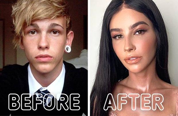 Loạt ảnh trước - sau của những ca phẫu thuật chuyển giới thành công mĩ mãn chứng tỏ khi được là chính mình bạn mới tỏa sáng rực rỡ nhất - Ảnh 1.