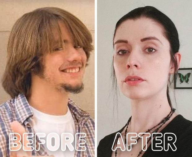 Loạt ảnh trước - sau của những ca phẫu thuật chuyển giới thành công mĩ mãn chứng tỏ khi được là chính mình bạn mới tỏa sáng rực rỡ nhất - Ảnh 6.