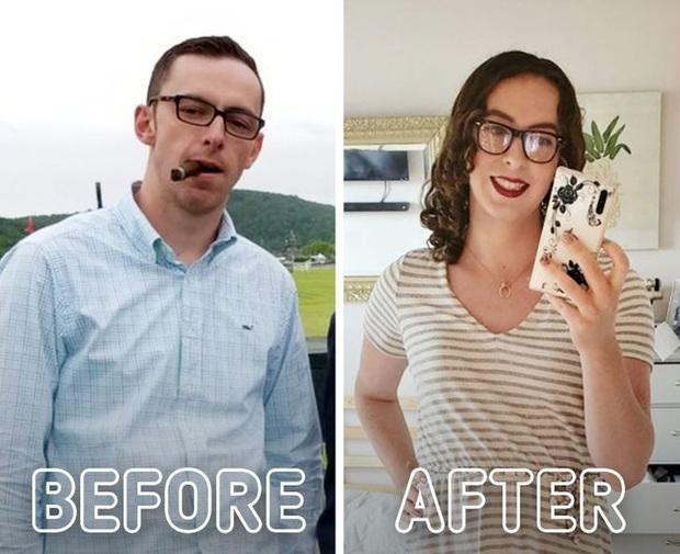 Loạt ảnh trước - sau của những ca phẫu thuật chuyển giới thành công mĩ mãn chứng tỏ khi được là chính mình bạn mới tỏa sáng rực rỡ nhất - Ảnh 9.