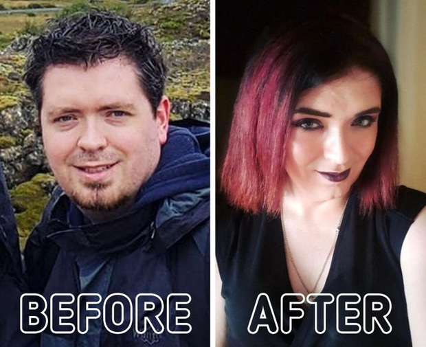 Loạt ảnh trước - sau của những ca phẫu thuật chuyển giới thành công mĩ mãn chứng tỏ khi được là chính mình bạn mới tỏa sáng rực rỡ nhất - Ảnh 14.