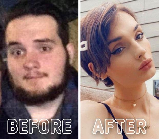 Loạt ảnh trước - sau của những ca phẫu thuật chuyển giới thành công mĩ mãn chứng tỏ khi được là chính mình bạn mới tỏa sáng rực rỡ nhất - Ảnh 13.