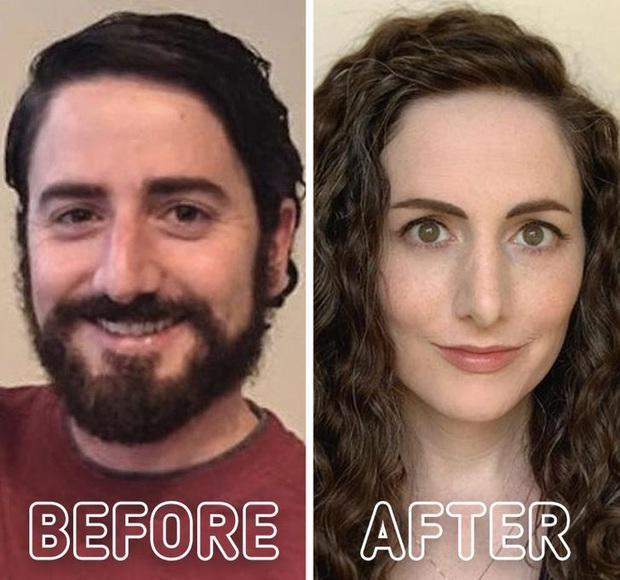Loạt ảnh trước - sau của những ca phẫu thuật chuyển giới thành công mĩ mãn chứng tỏ khi được là chính mình bạn mới tỏa sáng rực rỡ nhất - Ảnh 3.
