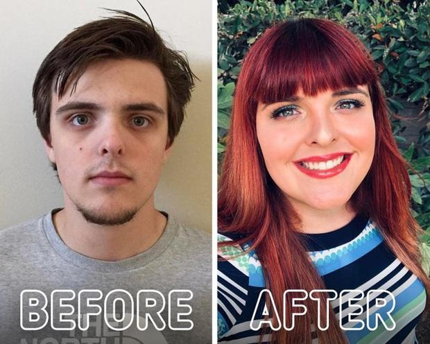Loạt ảnh trước - sau của những ca phẫu thuật chuyển giới thành công mĩ mãn chứng tỏ khi được là chính mình bạn mới tỏa sáng rực rỡ nhất - Ảnh 19.