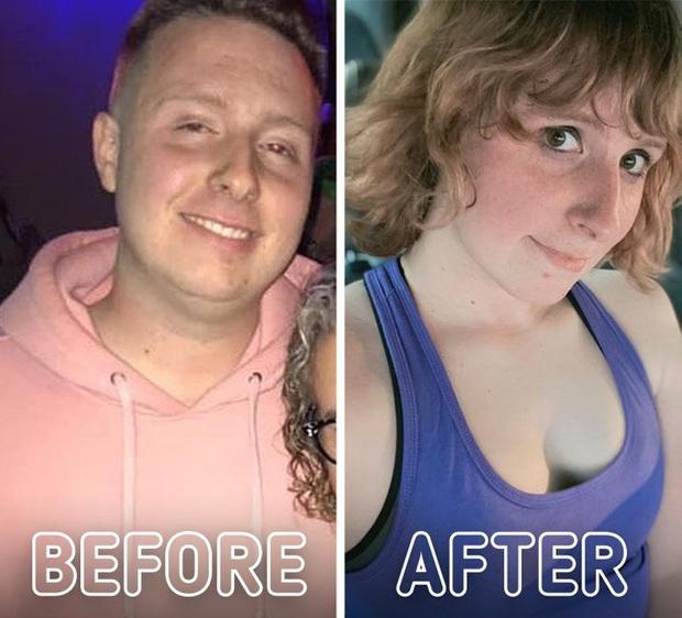 Loạt ảnh trước - sau của những ca phẫu thuật chuyển giới thành công mĩ mãn chứng tỏ khi được là chính mình bạn mới tỏa sáng rực rỡ nhất - Ảnh 20.