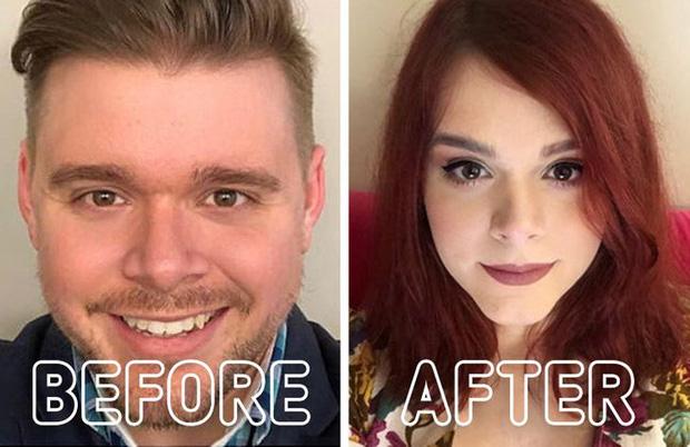Loạt ảnh trước - sau của những ca phẫu thuật chuyển giới thành công mĩ mãn chứng tỏ khi được là chính mình bạn mới tỏa sáng rực rỡ nhất - Ảnh 4.
