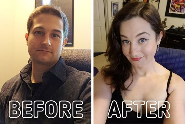 Loạt ảnh trước - sau của những ca phẫu thuật chuyển giới thành công mĩ mãn chứng tỏ khi được là chính mình bạn mới tỏa sáng rực rỡ nhất - Ảnh 12.