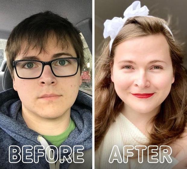 Loạt ảnh trước - sau của những ca phẫu thuật chuyển giới thành công mĩ mãn chứng tỏ khi được là chính mình bạn mới tỏa sáng rực rỡ nhất - Ảnh 10.