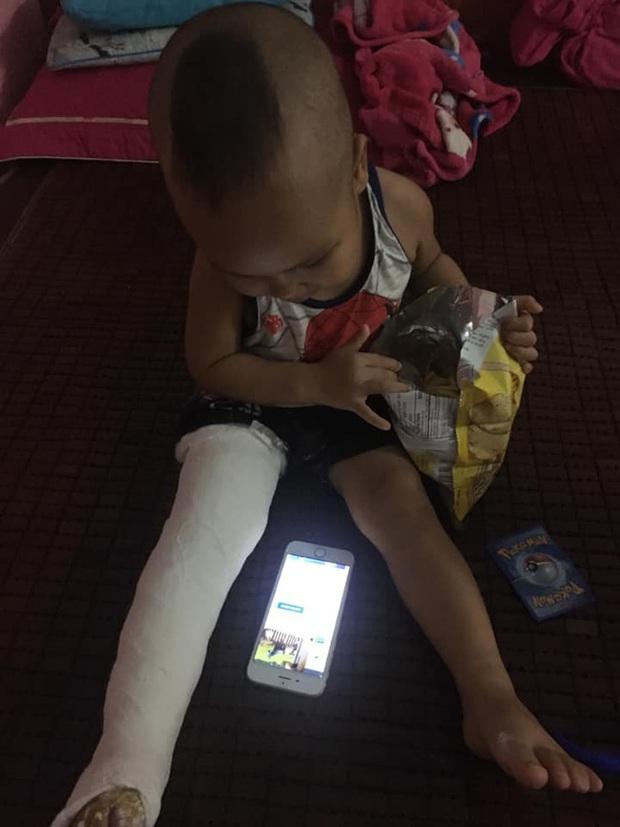 Xôn xao bé trai 2 tuổi ở Thái Nguyên g.ãy chân sau khi đến lớp, gia đình tố cô giáo tự đưa đến trạm y tế mà kh.ông th.ông báo - Ảnh 1.