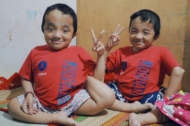 Đôi song sinh khuyết tật 14 tuổi hát cực hay, theo mẹ bán vé số khắp Sài Gòn: Cha tụi con mất rồi, chỉ còn có mẹ thôi - Ảnh 10.