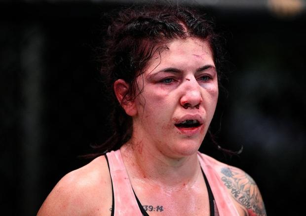 Nữ võ sĩ bị đánh sưng tấy mặt chỉ 3 tuần trước lễ cưới, đối thủ hối hận: Tôi xin lỗi - Ảnh 4.