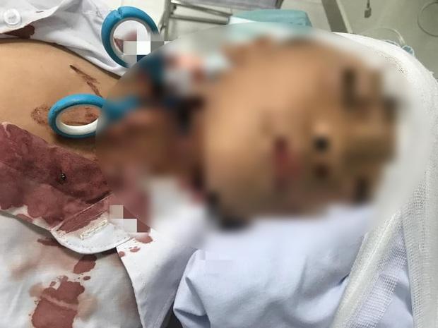 Cứu sống bé trai 7 tuổi bị kéo đâm xuyên cổ - Ảnh 1.