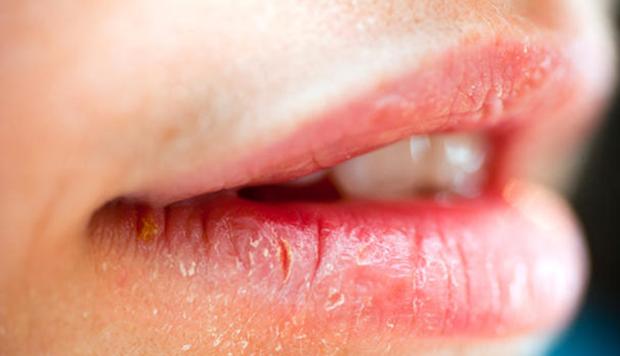 Con gái mắc bệnh phụ khoa thường có 3 đặc điểm khác thường xung quanh vùng miệng, kiểm tra xem bạn có nằm trong số đó - Ảnh 1.