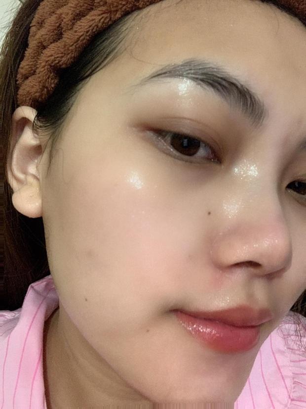 Từng nổi mụn vì skincare sai cách, cô nàng cải tổ da căng bóng nhờ loạt mặt nạ giấy chất lượng - Ảnh 3.